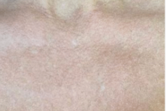 BBL-of-the-Decolletage-01-after