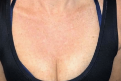 BBL-of-the-decolletage-02-After