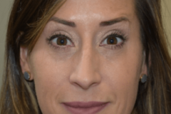 Botox After 01