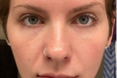 Botox-Forehead-Under-Eye-Filler-After