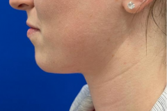 Chin-Filler-01-before